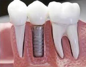 Inplant1